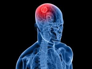 iStock_000011318371XSmall_400x300_brain cancer_Eraxion